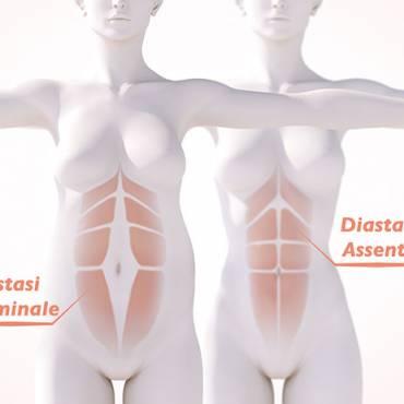Diastasi del muscoli retti