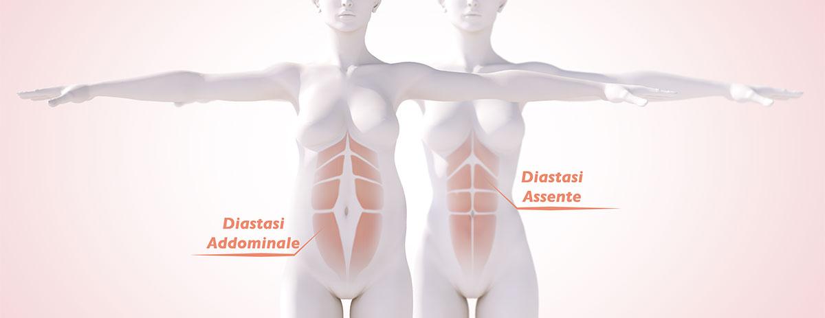 Diastasi del muscoli retti: cosa è e cosa fare per recuperare